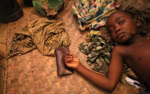 DEMOCRATIC REPUBLIC OF CONGO, AFRICA, MAPIMO - JULY 10: A young boy suffering from malaria rests on the floor with a high fever at a small medical center on July 10, 2013 in Mapimo, South Kivu, the Democratic Republic of Congo. In South Kivu in the Democratic Republic of Congo, under the rule of the popular movement Rahiya Mutomboki, an outbreak of malaria has been reported. Otherwise a common disease, got now out of control in a region of difficult access around the village Mapimo after the local people fled to forest fearing from government militia attacks. Although this medical facility has a capacity of 15 beds, there are more than 100 patients, mostly children, who lack care and drugs (antimalarial drugs). Those that are available, are being distributed free of charge from a non-profit organization People in Need. (Photo by Tomas Kubes/isifa/Getty Images)